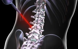 Features Of Spine Surgery And Top Spine Surgeons In India